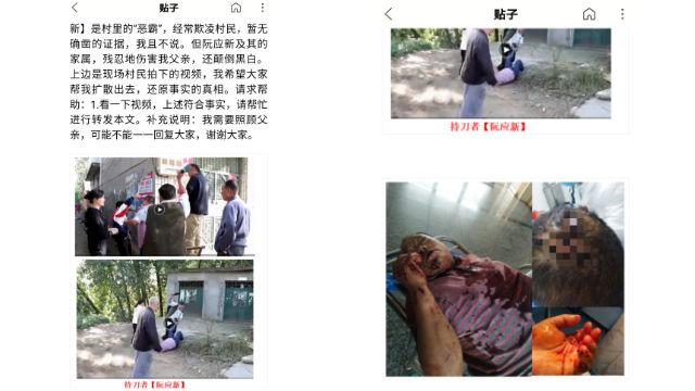 Ruan Yingxin injured Lei Debin with a knife