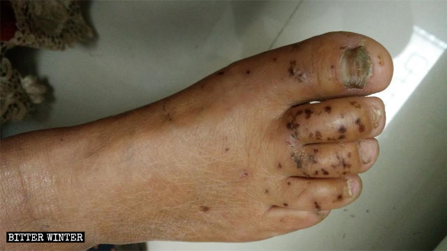 Darkened burn marks are still visible on the feet of the CAG member, who was subjected to electric shock torture.